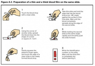 Preparation-of-a-thin-and-a-thick-blood-film-on-the-same-slide-570x397.jpg